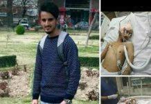 Kangan youth injured in clashes dies at SKIMS