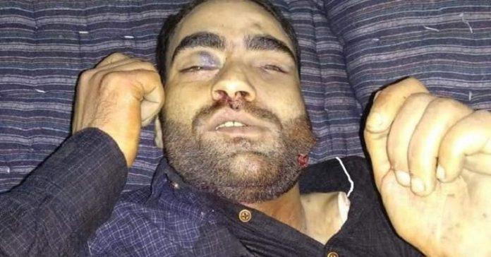 Bullet riddled body of 24-year old youth found in Pulwama