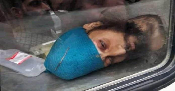 Tral man succumbs at SMHS Hospital